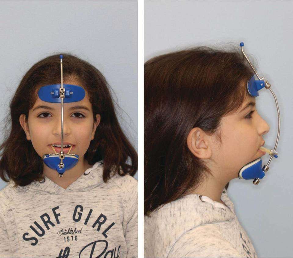 Front view (left) and side view (right) of a boy with a face mask with elastics at a downward angle to protract the maxilla downwards and forwards.