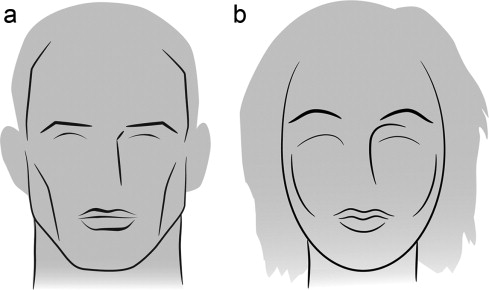 Facial feminization surgery: current state of the art