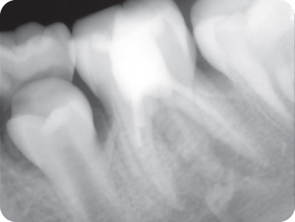 Illustration of Preoperative radiograph of a tooth after the initial emergency treatment.