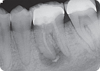 Radiograph showing Extrusion on M root. D canal appears filled to mid-root level.