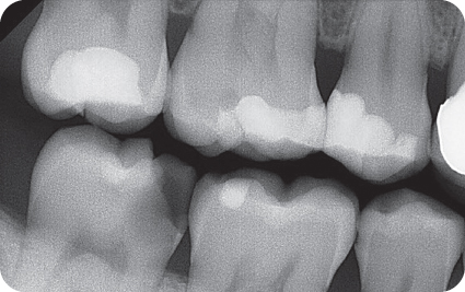 Illustration of Preoperative bitewing radiograph of tooth #31.