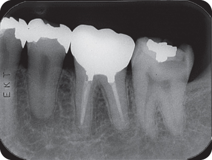 Non-surgical Root Canal Treatment Case V: Mandibular
