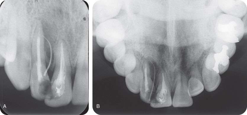Illustration of Periapical radiograph with gutta-percha point positioned in the sinus tract, pointing toward the tooth #7.; Illustration of Axial occlusal radiograph with gutta-percha point positioned in the sinus tract, pointing toward the tooth #7.