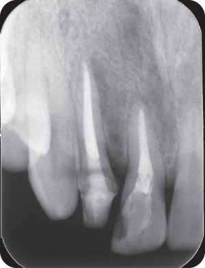 Illustration of a recall radiograph.