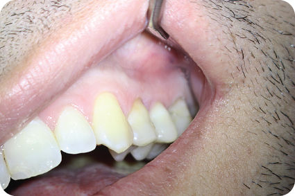 Postoperative photograph of tooth with sutures.