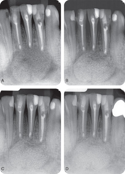 Illustration of Radiograph after root-end filling with MTA: immediately.; Illustration of Radiograph after root-end filling with MTA: Six-month follow-up.; Illustration of Radiograph after root-end filling with MTA: One-year follow-up.; Illustration of Radiograph after root-end filling with MTA: Two-year follow-up.