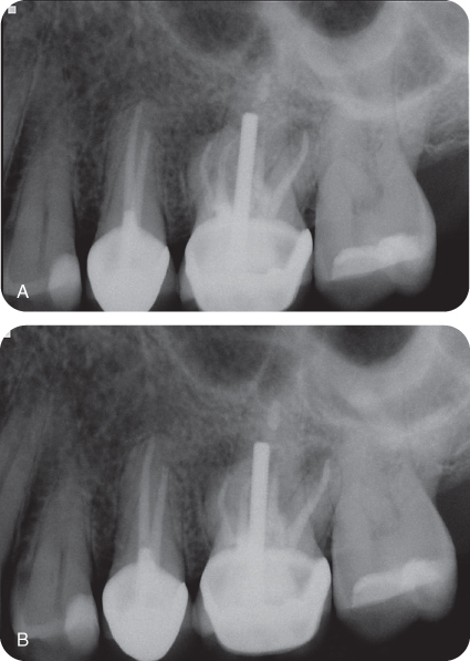 Illustration of Preoperative radiographs of tooth #14 (1).; Illustration of Preoperative radiographs of tooth #14 (2).