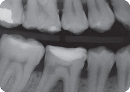 Illustration of Preoperative bitewing radiograph of tooth #30.