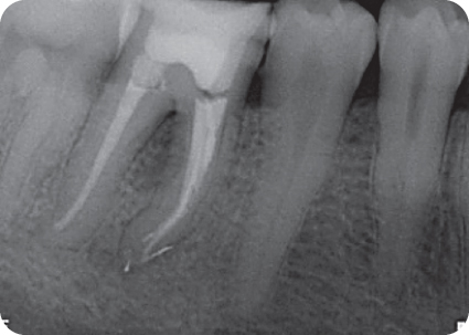 Illustration of Postoperative radiograph of tooth #30 from different angle.