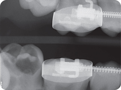Illustration of Preoperative bitewing radiograph showing the extensive coronal radiolucency encroaching on the pulp.