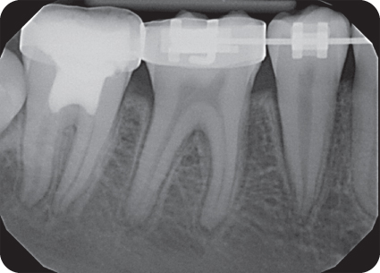 Illustration of Postoperative radiograph Follow-up 1 year 9 months.