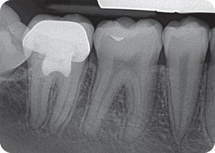 Illustration of Postoperative radiograph Follow-up 2 years 3 months.