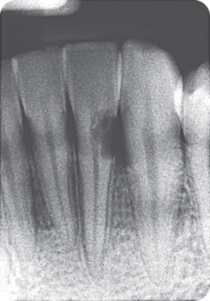 Illustration of Preoperative radiograph revealing an irregular radiolucency extending both coronally and into the radicular tooth structure on the distal cervical side of tooth #23.