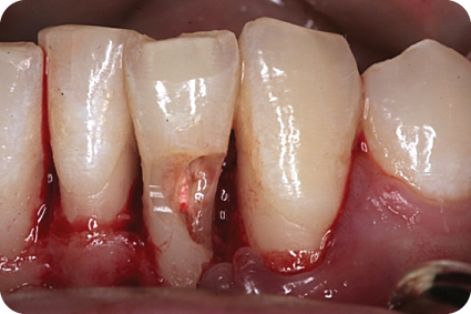 Photo of resorption defect of tooth.