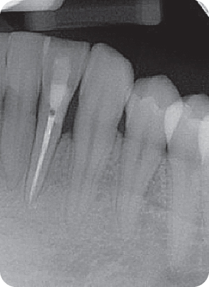 Illustration of radiograph of root canal.