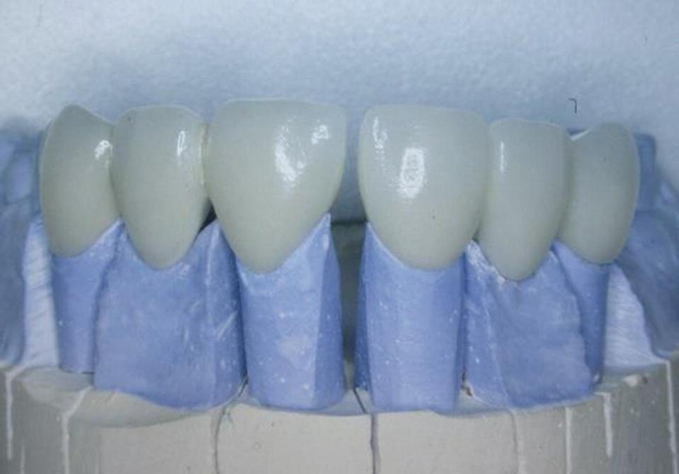 Dental crowns fitted on dies.