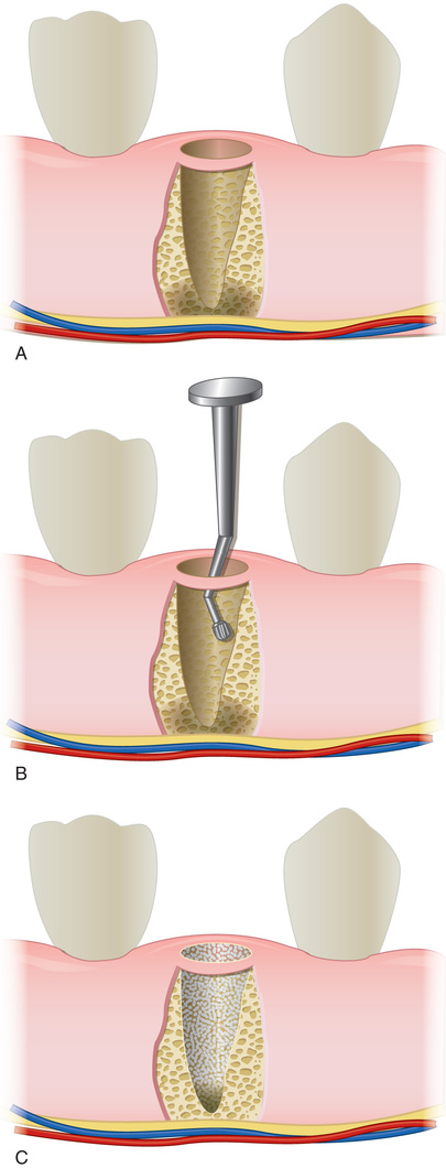 Neurosensory Deficit Complications in Implant Dentistry