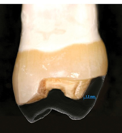 Photograph shows comparison of occlusal reduction with axial reduction, when pulp is farther away from occlusal surface that reduction will cause less trauma than axial reduction.
