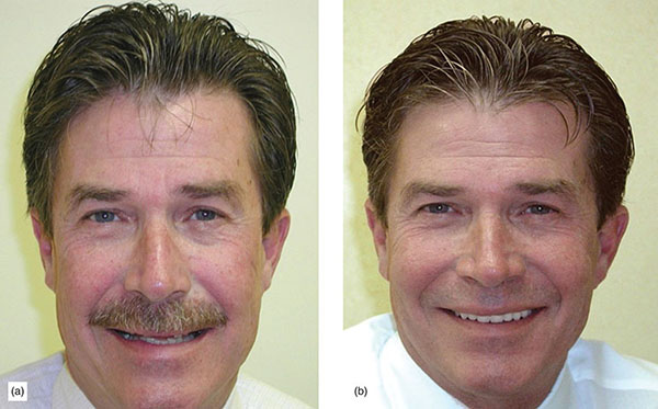Photographs show patient's photo before undergoing veneer and after undergoing veneer, where teeth structure is completely different and healthy.