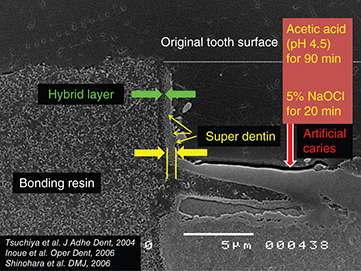 Photograph shows microscopic view of super dentin structure having hybrid layer above super dentin, bonding resin region where measurement is 5mm with acetic acid of pH 4.5.