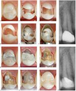 25 Minimal Interventional Treatment of Caries in the Permanent Dentition: Clinical Cases