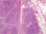 8 Pathology and Cytopathology: Oral Malignant Mucosal Neoplasms