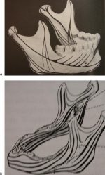Part 1. Surgical Anatomy and General Considerations