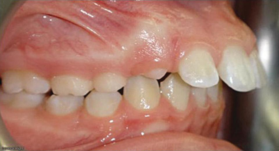 Photo displaying overjet malocclusion (right) of teeth.