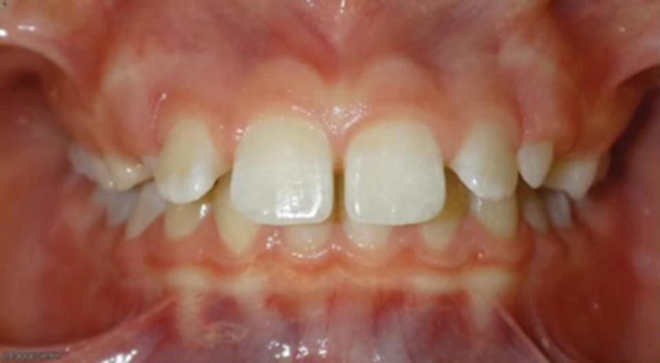 Photo displaying a frontal view of overjet malocclusion of teeth.