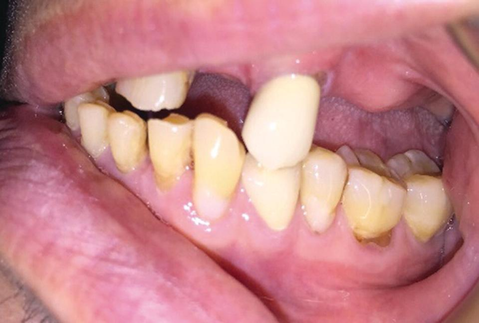 Right lateral retracted view of the posterior teeth with buccal surface abrasions.