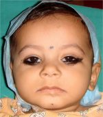 Median cleft of lower lip with ankyloglossia: A case report
