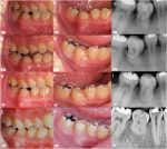 Autogenous tooth transplantation in a severely insufficient alveolar ridge without a bone graft: Two case reports