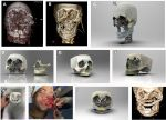 Three-Dimensional Computer-Assisted Surgical Planning and Manufacturing in Complex Maxillary Reconstruction