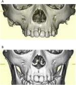 Median alveolar cleft and palatal mass without a median upper cleft lip