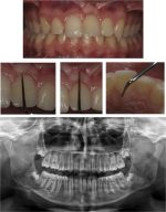 Periodontal implications of surgical-orthodontic treatment of an impacted dilacerated maxillary incisor: A case report with a 2-year follow-up