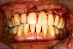 2 Ablative and reconstructive surgery of the mandible