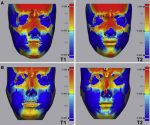 Differences in soft-tissue thickness changes after bimaxillary surgery between patients with vertically high angle and normal angle