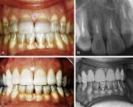Bleaching Discolored Nonvital Teeth