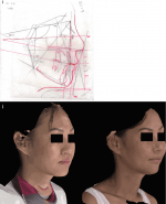 Photogrammetric Analysis in Orthognathic Surgery