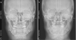 Application of the Surgery-First Approach in Patients with Class II Dentofacial Deformities