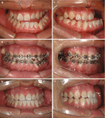 Application of the Surgery-First Approach to Facial Asymmetry