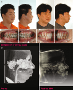Strategy for Class II Orthognathic Surgery: Orthodontic Perspective