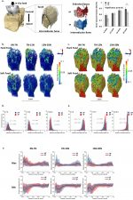 Functional adaptation of interradicular alveolar bone to reduced chewing loads on dentoalveolar joints in rats