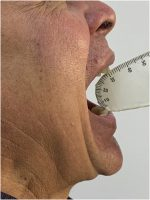 Pseudo-ankylosis of the temporomandibular joint due to hyperplasia of articular eminence: Rare case