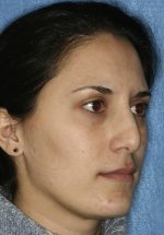 Nasal Tip Deformities After Primary Rhinoplasty