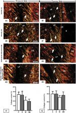 Effects of obesity on periodontal tissue remodeling during orthodontic movement