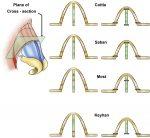Preservation Dorsal Hump Surgery