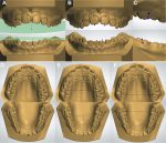Dental arch changes after open bite treatment with spurs associated with posterior build-ups in the mixed dentition: A randomized clinical trial