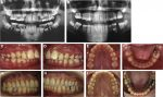 Multidisciplinary management of permanent first molar extractions