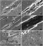 Melatonin-doped polymeric nanoparticles reinforce and remineralize radicular dentin: Morpho-histological, chemical and biomechanical studies